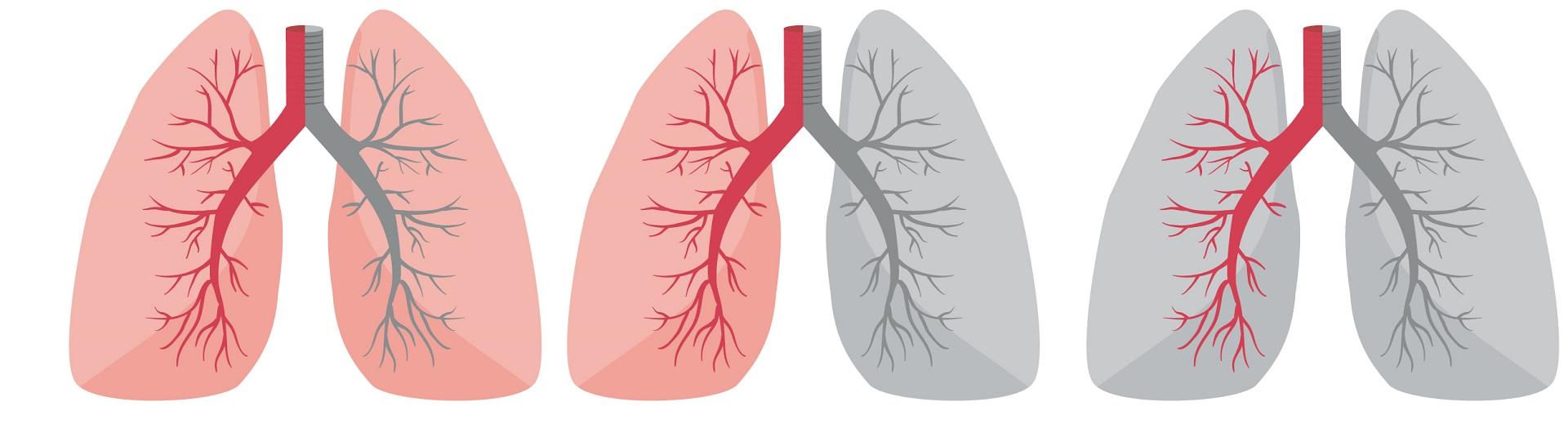 Curso Terapia Ventilatoria y Ventilación Mecánica