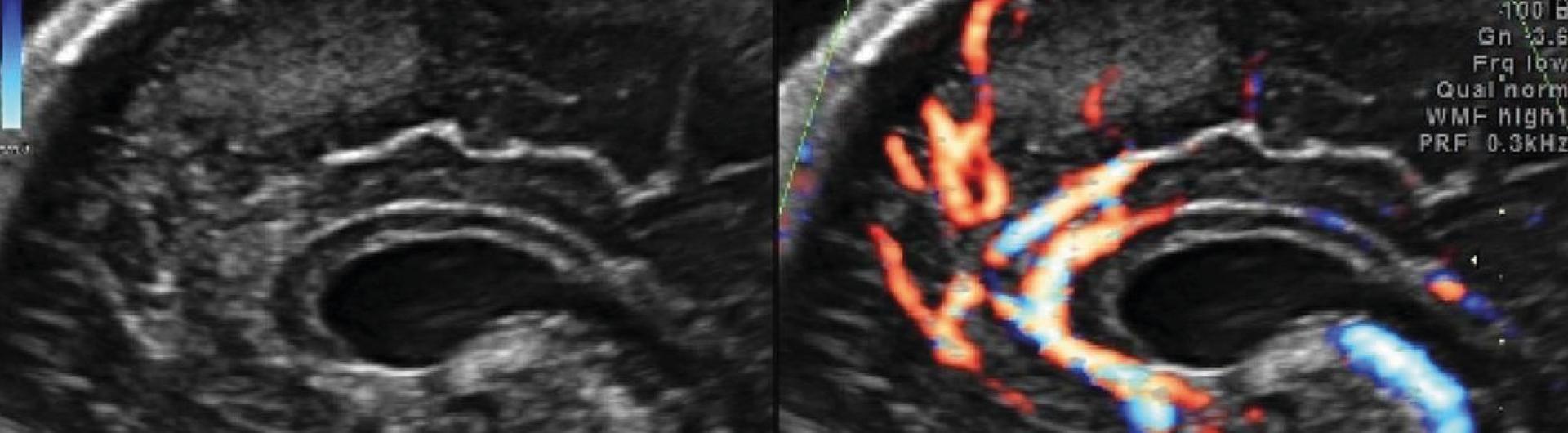 Curso Actualización en evaluación básica del corazón fetal